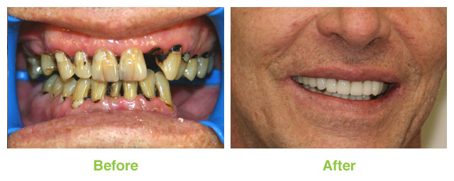Patient who had a dramatic smile makeover in Murray UT.