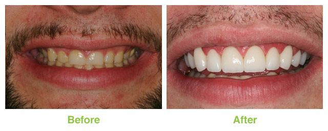Before and after photo of a porcelain veneer and laser dentistry patient from Sandy UT.
