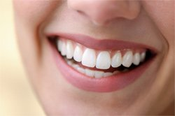 Woman with perfect smile thanks to porcelain dental veneers that she got near Salt Lake City.