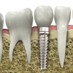 Image of a tooth implant, available as part of implant dentistry services near Salt Lake City and Sandy Utah