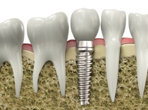 dental implants Salt Lake City