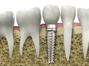 dental implants Salt Lake City