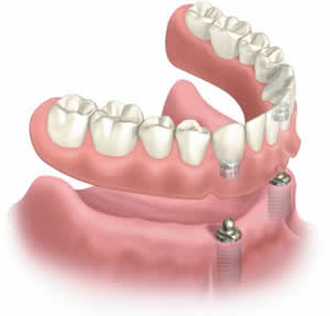 Implant supported dentures in Murray, UT can restore smile aesthetics and bite function.